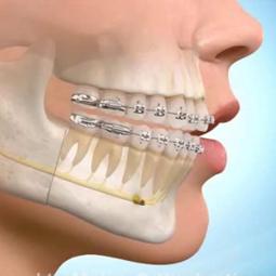 ortodonti2