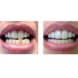 ortodonti3